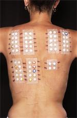 steroidni dermatitis simptomi